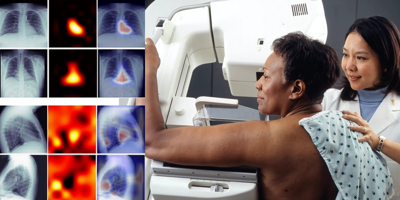 Des radiologues s'intéressent au deep learning pour diagnostiquer les calcifications coronaires – Intelligence artificielle – Actu IA