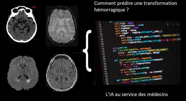 Comment un algorithme de deep-learning pourrait prédire des saignements post-AVC – Echosciences Grenoble